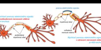 Skleróza multiplex môže spôsobovať veľké množstvo neurologických symptómov.